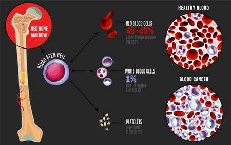 La leucemia y la sangre normal bajo el microscopio en comparación. Infografía médica. Esquema de producción de células sanguíneas. Ilustración de vector sobre fondo gris. Concepto científico. Cartel horizontal.