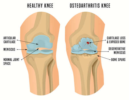 Osteoarthritis of the knee. Editable vector illustration in detailed realistic style isolated on a white background. Medical, healthcare and physiology concept. Scientific infographic.