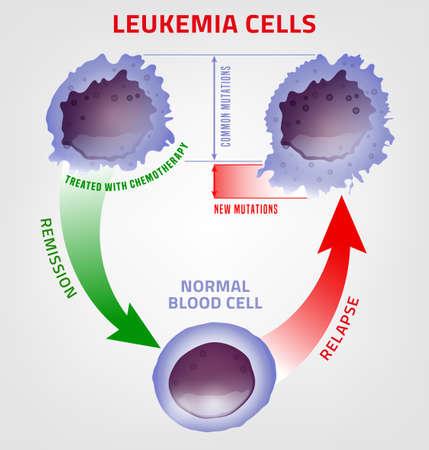 En comparación, la leucemia y la sangre normal bajo el microscopio. Infografía médica. Ilustración vectorial editable aislada sobre fondo blanco. Concepto científico y educativo. Cartel horizontal.