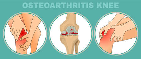 Osteoarthritis of the knee. Editable vector illustration in detailed realistic style isolated on a light green background. Medical, healthcare and physiology concept. Scientific infographic.