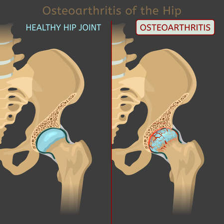Hip osteoarthritis. Synovial joints degenerative disease. Editable vector illustration in realistic style isolated on a grey background. Medical, healthcare, physiology concept. Scientific infographic
