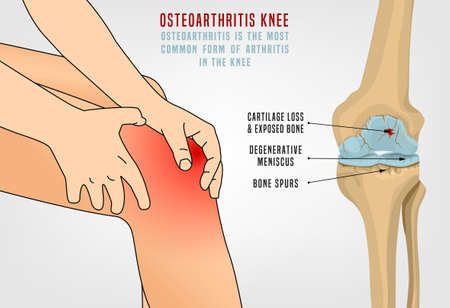 Osteoarthritis of the knee. Editable vector illustration in detailed realistic style isolated on a light background. Medical, healthcare and physiology concept. Scientific infographic.