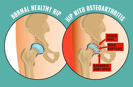 Hip Osteoarthritis Infographic. Realistic bones scheme in comparison. Lower back and joint pain. Vector illustration on a green background. Medical, healthcare, elderly diseases graphic concept.