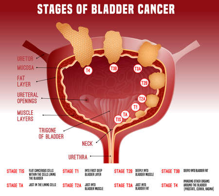 Bladder cancer stages. Human organ anatomy. Editable vector illustration in realistic style isolated on light background. Medical, healthcare and scientific concept. Educational infographic
