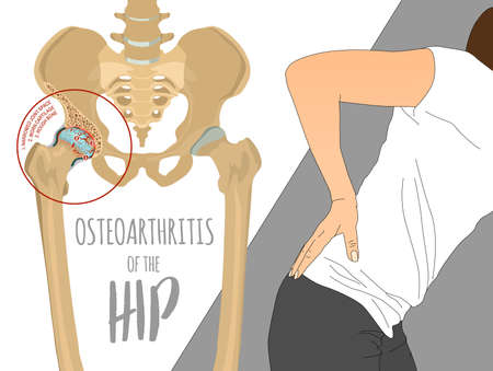 Hip Osteoarthritis Infographic. Realistic bones scheme. Lower back and joint pain. Editable vector illustration isolated on a light background. Medical, healthcare, elderly diseases graphic concept. Ilustração