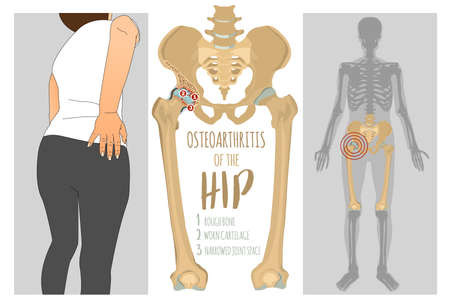 Hip Osteoarthritis Infographic. Realistic bones scheme. Lower back and joint pain. Editable vector illustration isolated on a light background. Medical, healthcare, elderly diseases graphic concept.