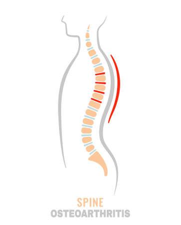 Spine osteoarthritis icon Stock Vector - 124397764