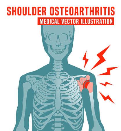 Shoulder Osteoarthritis image