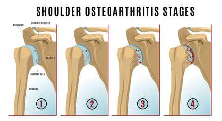 Shoulder osteoarthritis infographic Illustration