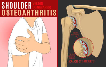 Shoulder osteoarthritis infographic.