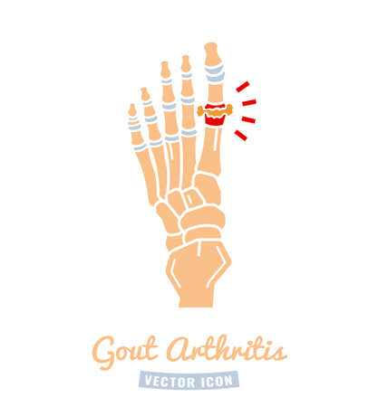 Gout arthritis icon Vector Illustration