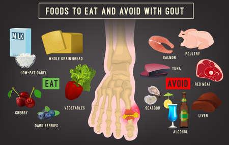 Gout arthritis infographic 向量圖像