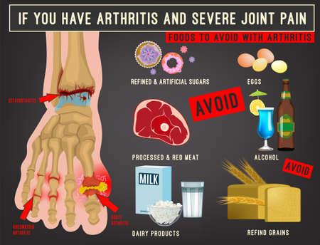 Arthritis foods image