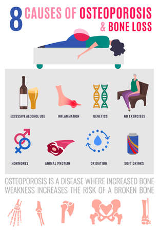 8 causes of osteoporosis and bone loss. Medical infographic poster. Healthcare, medicine, early prevention concept. Vertical format. Vector illustration with icons in modern vanguard simplistic style