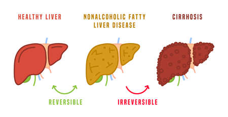 Stages of liver diseases. Medical infographic. Vector illustration Ilustrace