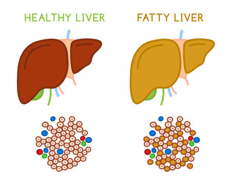 Healthy and fatty liver. Medical vector infographic. Ilustrace