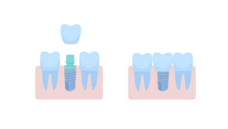 A dental implant placed between two healthy teeth, the abutment is covered with a crown. vector illustration, in a flat style with a thin line. Inside the oral cavity, the gums, the roots