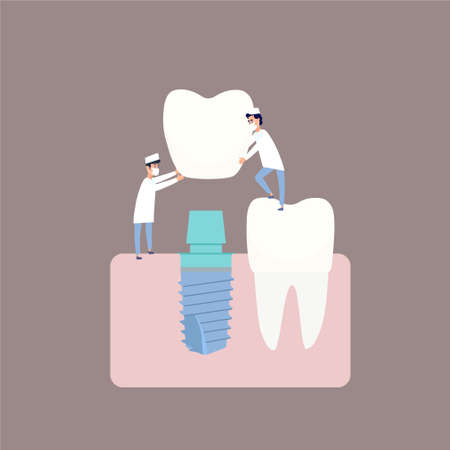Two dentists perform dental implantation: install the implant on the abutment. Vector illustration, in a flat style. Poster to the clinic, image for instructions for dentists, training books.