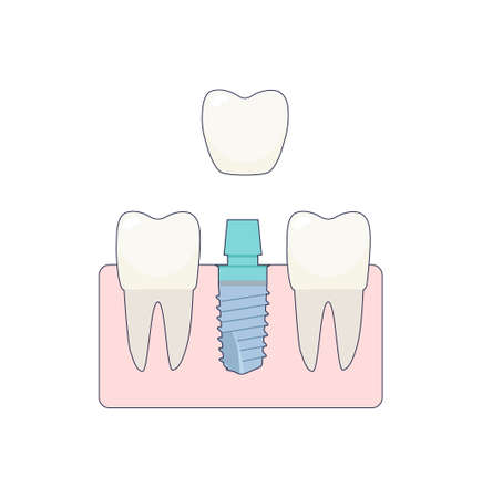 A dental implant placed between two healthy teeth, the abutment is covered with a crown. ivector illustration, in a flat style with a thin line. Inside the oral cavity, the gums, the roots