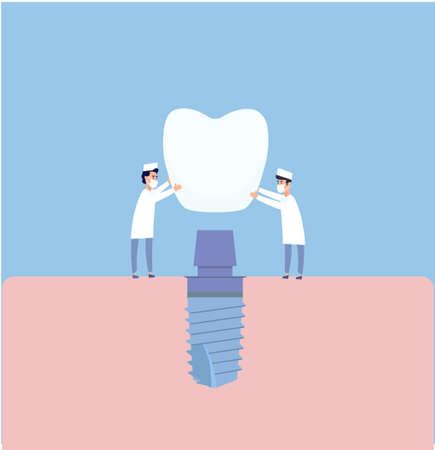 Two dentists perform dental implantation: install the implant on the abutment. Vector illustration, in a flat style. Poster to the clinic, image for instructions for dentists, training books Vecteurs