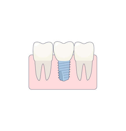 A dental implant placed between two healthy teeth, the abutment is covered with a crown. Illustration in a flat style with a thin line. Inside the oral cavity, the gums, the roots.