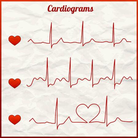 Set of cardiograms Vector