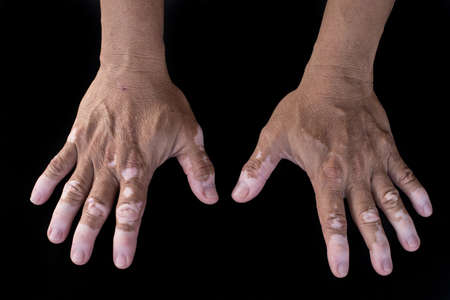 variant: Quadrichrome vitiligo is another variant of vitiligo (on hand) Stock Photo