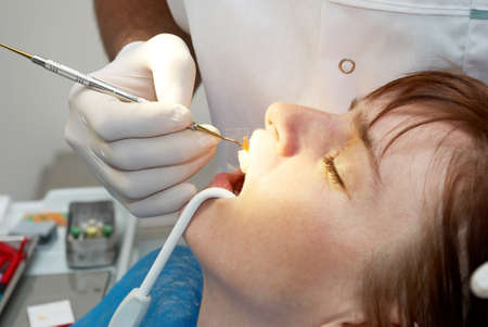 dentist curing the patient's closeup Stock Photo - 8143019