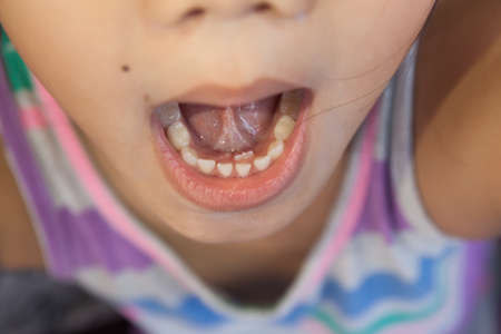 Adult permanent teeth coming in behind baby teeth