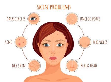 Types de problèmes de peau. Illustration vectorielle. Bannière d'information sur les soins de la peau. Un visage de femme avec des exemples de problèmes de peau.