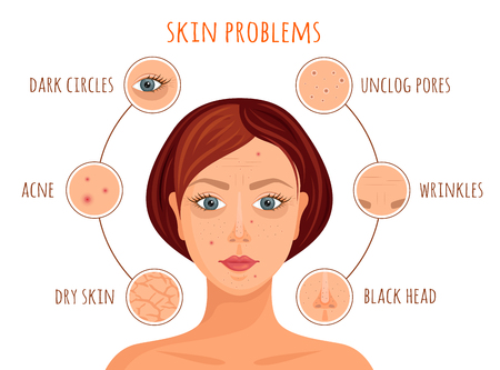 Types of skin problems. Vector illustration. Information banner on the skin care. A woman's face with examples of skin problems. Ilustração