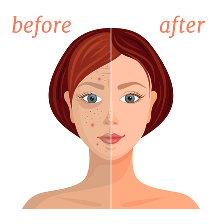 Banner con l'immagine del viso di una donna prima e dopo l'applicazione dei cosmetici. Confronto tra pelle opaca problematica e sana, pulita. Illustrazione vettoriale.