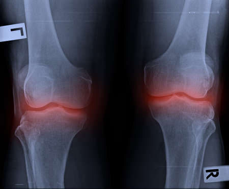 film x-ray both knee joints and pain area.