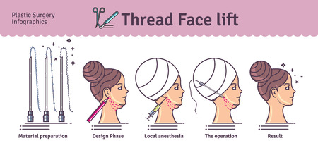 procedures: Vector Illustrated set with face lifting surgery by thread. Infographics with icons of plastic surgery procedures.