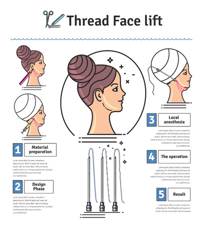 plastic surgery: Vector Illustrated set with face lifting surgery by thread. Infographics with icons of plastic surgery procedures.