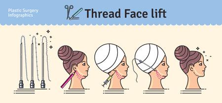 Vector Illustrated set con il viso di sollevamento intervento chirurgico per thread. Infografica con le icone di procedure di chirurgia plastica.