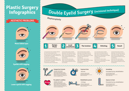 plastic surgery: Vector Illustrated set with double eyelid surgery. Infographics with icons of plastic surgery procedures.