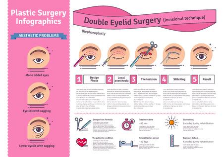 Vector Illustrated défini avec la chirurgie des paupières double. Infographies avec des icônes de procédures de chirurgie plastique.