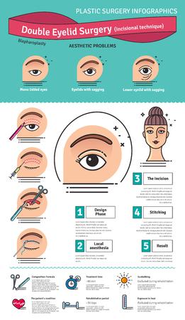 Vector Illustrated set con la chirurgia doppia palpebra. Infografica con le icone di procedure di chirurgia plastica.