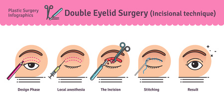 Vector Illustrated set with double eyelid surgery. Infographics with icons of plastic surgery procedures. 免版税图像 - 66884758
