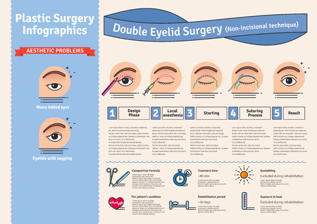 procedures: Vector Illustrated set with double eyelid surgery. Non-incisional technique. Infographics with icons of plastic surgery procedures. Illustration