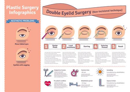 ベクター イラストは二重まぶた手術で設定します。非切開法。整形手術の手順のアイコンとインフォ グラフィック。