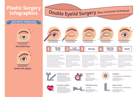 Vector Illustrated set with double eyelid surgery. Non-incisional technique. Infographics with icons of plastic surgery procedures. Иллюстрация