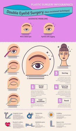 plastic surgery: Vector Illustrated set with double eyelid surgery. Non-incisional technique. Infographics with icons of plastic surgery procedures. Illustration