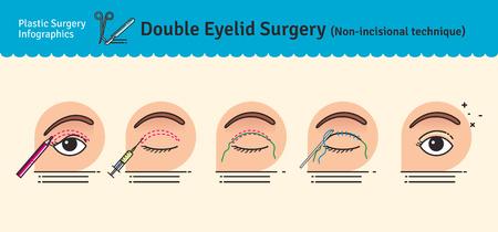 Vector Illustrated défini avec la chirurgie des paupières double. Cette technique non-incisionnelle. Infographies avec des icônes de procédures de chirurgie plastique.