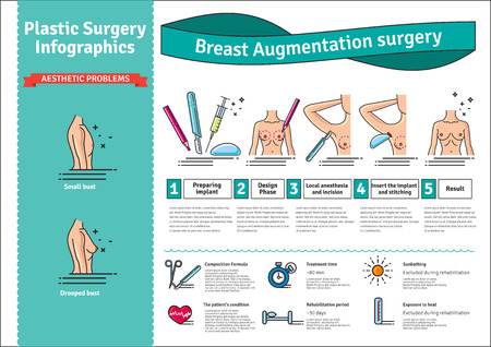 breast implant: Illustrated set with breast augmentation surgery. Infographics with icons of plastic surgery procedures.