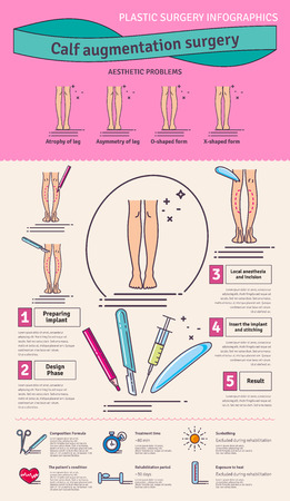 augmentation: Illustrated set with calf augmentation surgery. Infographics with icons of plastic surgery procedures.