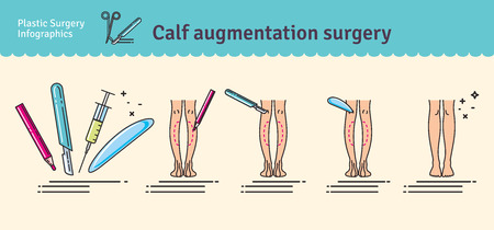anesthesia: Illustrated set with calf augmentation surgery. Infographics with icons of plastic surgery procedures.