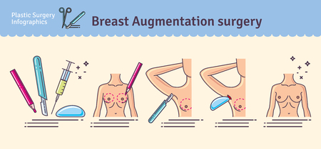 Illustrated set with breast augmentation surgery. Infographics with icons of plastic surgery procedures.
