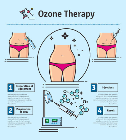 Illustrated set with Cosmetology Ozone Therapy. Infographics with icons of medical cosmetic procedures for skin. Illustration